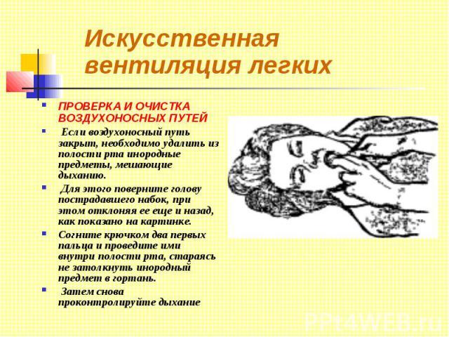 Искусственная вентиляция легких ПРОВЕРКА И ОЧИСТКА ВОЗДУХОНОСНЫХ ПУТЕЙ Если воздухоносный путь закрыт, необходимо удалить из полости рта инородные предметы, мешающие дыханию. Для этого поверните голову пострадавшего набок, при этом отклоняя ее еще и…