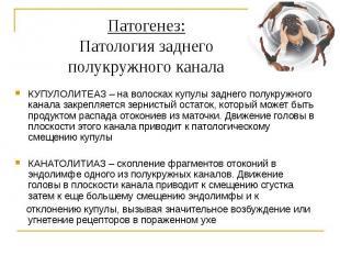 Патогенез: Патология заднего полукружного канала КУПУЛОЛИТЕАЗ – на волосках купу