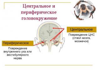 Центральное и периферическое головокружение