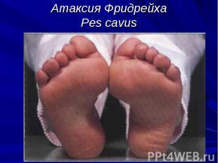 Атаксия Фридрейха Pes cavus