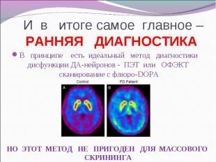 В принципе есть идеальный метод диагностики дисфункции ДА-нейронов - ПЭТ или ОФЭ