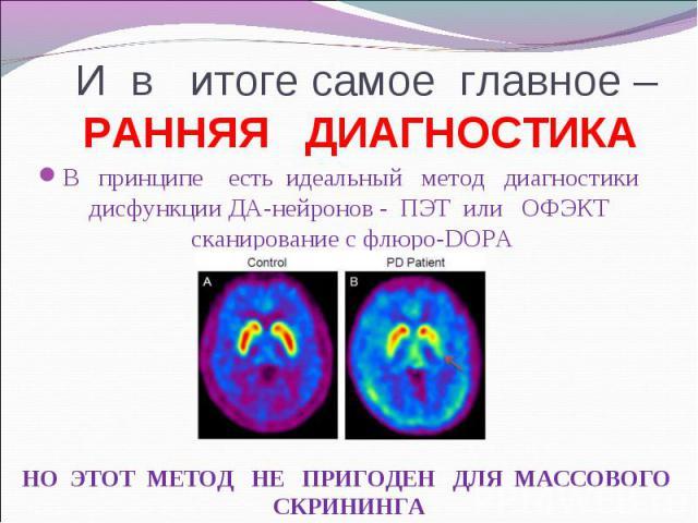 В принципе есть идеальный метод диагностики дисфункции ДА-нейронов - ПЭТ или ОФЭКТ сканирование с флюро-DOPA В принципе есть идеальный метод диагностики дисфункции ДА-нейронов - ПЭТ или ОФЭКТ сканирование с флюро-DOPA