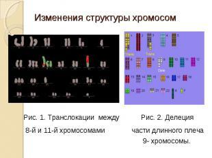 Рис. 1. Транслокации между Рис. 2. Делеция 8-й и 11-й хромосомами части длинного