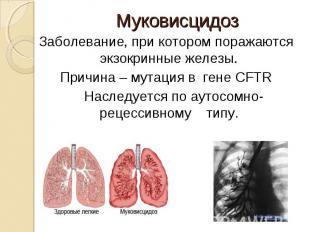 Заболевание, при котором поражаются экзокринные железы. Заболевание, при котором