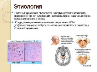 Болезнь Паркинсона вызывается гибелью дофаминэргических нейронов в черной субста