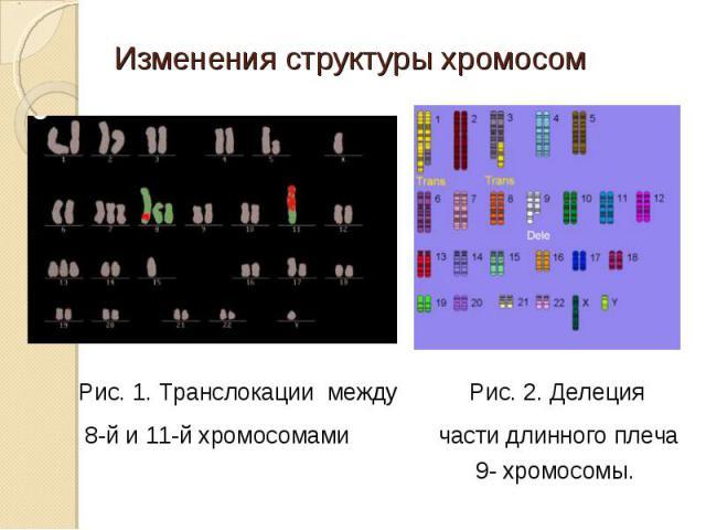 Рис. 1. Транслокации между Рис. 2. Делеция 8-й и 11-й хромосомами части длинного плеча 9- хромосомы.