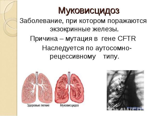 Заболевание, при котором поражаются экзокринные железы. Заболевание, при котором поражаются экзокринные железы. Причина – мутация в гене CFTR Наследуется по аутосомно-рецессивному типу.