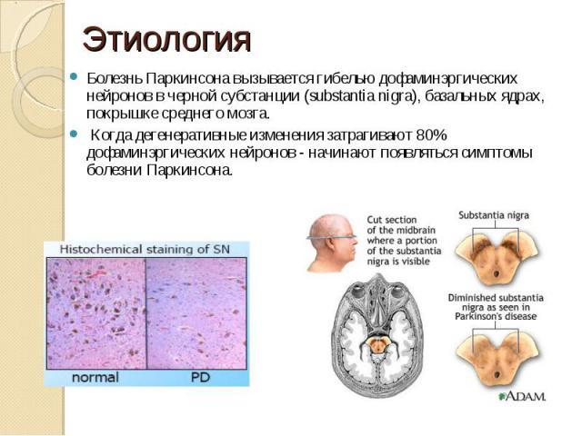 Болезнь Паркинсона вызывается гибелью дофаминэргических нейронов в черной субстанции (substantia nigra), базальных ядрах, покрышке среднего мозга. Когда дегенеративные изменения затрагивают 80% дофаминэргических нейронов - начинают появляться симпто…