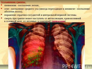 Осложнения гриппа: пневмония - воспаление легких, отит - воспаление среднего уха
