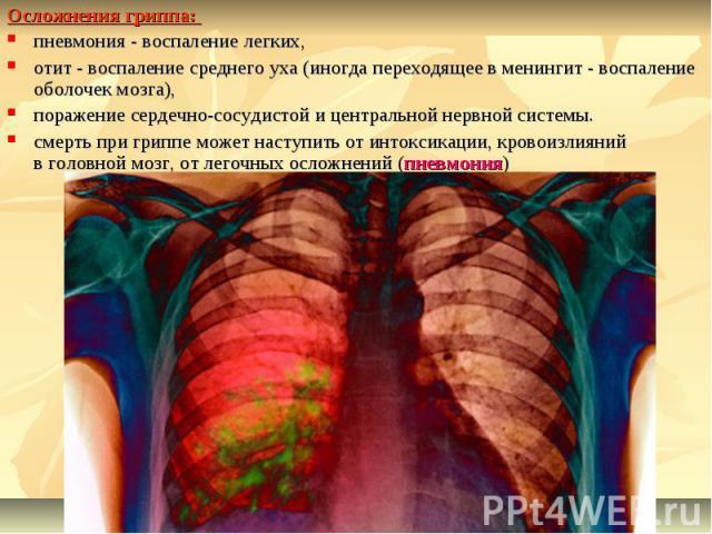 Осложнения гриппа: пневмония - воспаление легких, отит - воспаление среднего уха (иногда переходящее в менингит - воспаление оболочек мозга), поражение сердечно-сосудистой и центральной нервной системы. смерть при гриппе может наступить от интоксика…