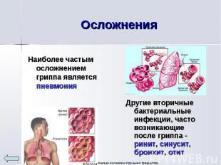 Наиболее частым осложнением гриппа является пневмония Наиболее частым осложнение