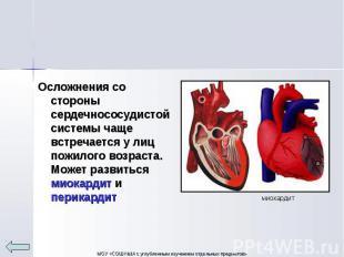 Осложнения со стороны сердечнососудистой системы чаще встречается у лиц пожилого