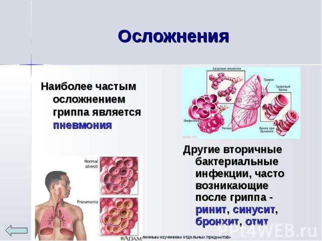 Наиболее частым осложнением гриппа является пневмония Наиболее частым осложнением гриппа является пневмония