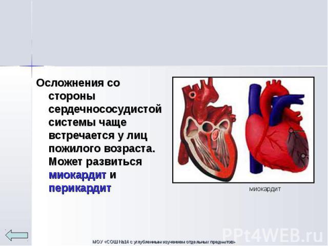 Осложнения со стороны сердечнососудистой системы чаще встречается у лиц пожилого возраста. Может развиться миокардит и перикардит Осложнения со стороны сердечнососудистой системы чаще встречается у лиц пожилого возраста. Может развиться миокардит и …