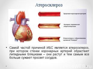 Самой частой причиной ИБС является атеросклероз, при котором стенки коронарных а