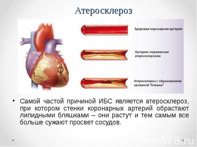 Самой частой причиной ИБС является атеросклероз, при котором стенки коронарных артерий обрастают липидными бляшками – они растут и тем самым все больше сужают просвет сосудов. Самой частой причиной ИБС является атеросклероз, при котором стенки корон…
