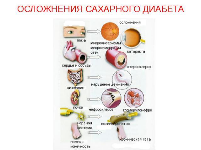 Осложнения сахарного диабета помощь