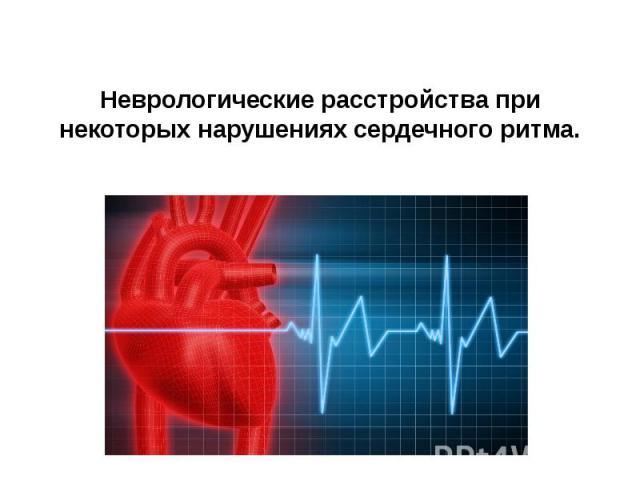 Неврологические расстройства при некоторых нарушениях сердечного ритма.