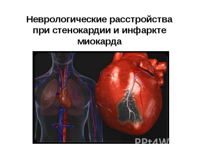 Неврологические расстройства при стенокардии и инфаркте миокарда