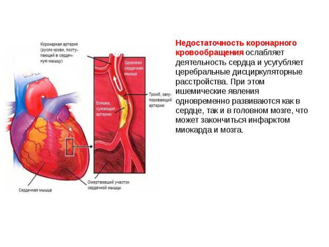 Недостаточность коронарного кровообращения ослабляет деятельность сердца и усугубляет церебральные дисциркуляторные расстройства. При этом ишемические явления одновременно развиваются как в сердце, так и в головном мозге, что может закончиться инфар…