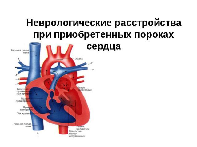 Неврологические расстройства при приобретенных пороках сердца