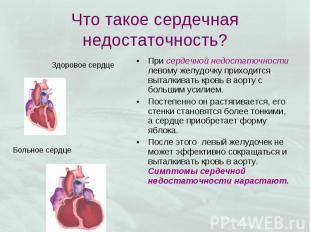 При сердечной недостаточности левому желудочку приходится выталкивать кровь в ао