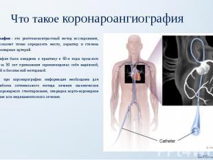 Что такое коронароангиография Коронарография- это рентгеноконтрастный мето