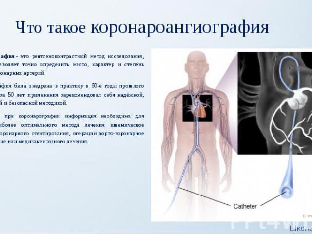 Что такое коронароангиография Коронарография- это рентгеноконтрастный метод исследования, который позволяет точно определить место, характер и степень сужения коронарных артерий. Коронарография была внедрена в практику в 60-е годы прошлого сто…