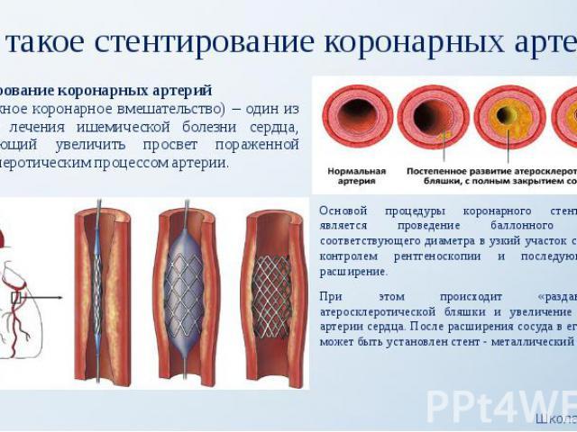 Что такое стентирование коронарных артерий? Основой процедуры коронарного стентирования является проведение баллонного катетера соответствующего диаметра в узкий участок сосуда под контролем рентгеноскопии и последующее его расширение. При этом прои…