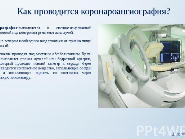 Как проводится коронароангиография? Коронарографиявыполняется в специализированной операционной под контролем рентгеновских лучей. Накануне вечером необходимо воздержаться от приёма пищи и жидкостей. Исследование проводят под местным обезболив…