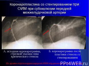 А. исходная коронарограмма, стрелкой указана зона критического стеноза А. исходн