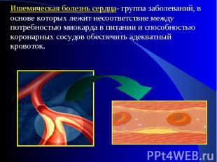 Ишемическая болезнь сердца- группа заболеваний, в основе которых лежит несоответ