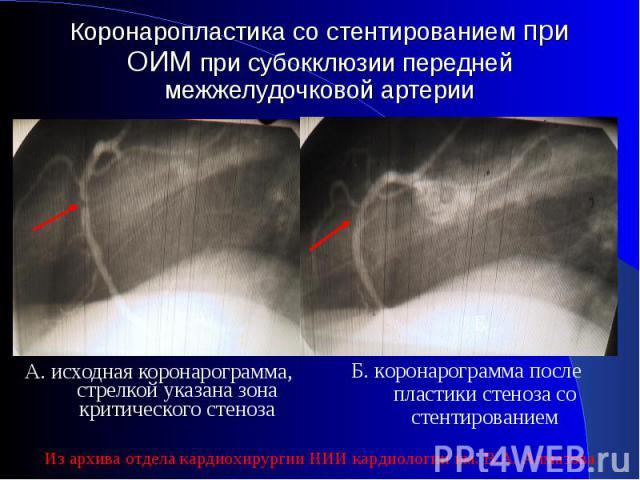 А. исходная коронарограмма, стрелкой указана зона критического стеноза А. исходная коронарограмма, стрелкой указана зона критического стеноза