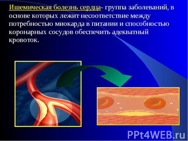 Ишемическая болезнь сердца- группа заболеваний, в основе которых лежит несоответствие между потребностью миокарда в питании и способностью коронарных сосудов обеспечить адекватный кровоток. Ишемическая болезнь сердца- группа заболеваний, в основе ко…