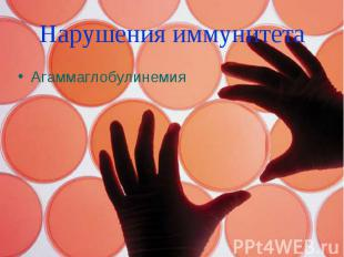 Нарушения иммунитета Агаммаглобулинемия