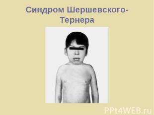 Синдром Шершевского-Тернера