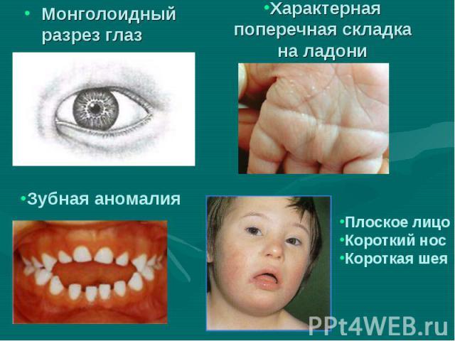 Монголоидный разрез глаз Монголоидный разрез глаз