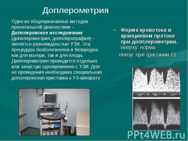 Форма кровотока в аранциевом протоке при допплерометрии. вверху: норма Форма кровотока в аранциевом протоке при допплерометрии. вверху: норма внизу: при трисомии 21