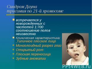 Синдром Дауна трисомия по 21-й хромосоме встречается у новорожденных с частотой