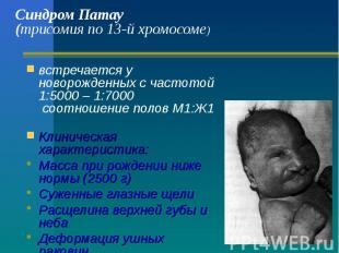 Синдром Патау (трисомия по 13-й хромосоме) встречается у новорожденных с частото