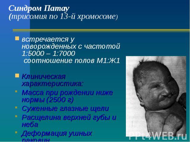 Синдром Патау (трисомия по 13-й хромосоме) встречается у новорожденных с частотой 1:5000 – 1:7000 соотношение полов М1:Ж1 Клиническая характеристика: Масса при рождении ниже нормы (2500 г) Суженные глазные щели Расщелина верхней губы и неба Деформац…