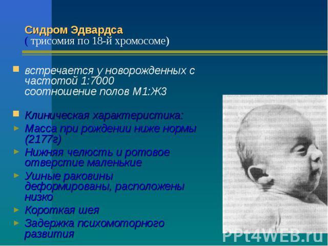 Сидром Эдвардса ( трисомия по 18-й хромосоме) встречается у новорожденных с частотой 1:7000 соотношение полов М1:Ж3 Клиническая характеристика: Масса при рождении ниже нормы (2177г) Нижняя челюсть и ротовое отверстие маленькие Ушные раковины деформи…