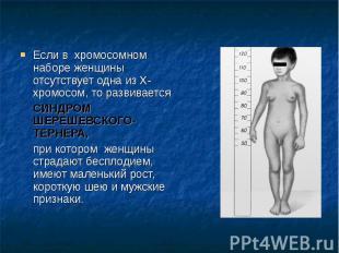 Если в хромосомном наборе женщины отсутствует одна из Х-хромосом, то развивается