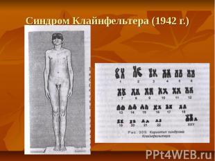 Синдром Клайнфельтера (1942 г.)