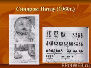 Синдром Патау (1960г.)