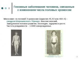 Моносомия по половой Х-хромосоме (кариотип 45,ХО или 44А+Х) – синдром Шерешевско