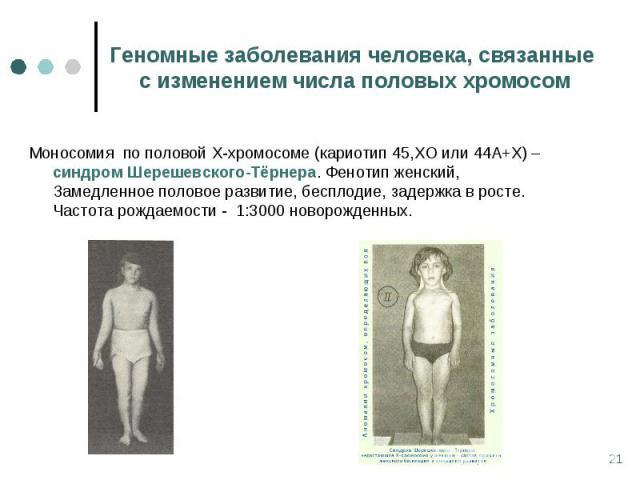 Моносомия по половой Х-хромосоме (кариотип 45,ХО или 44А+Х) – синдром Шерешевского-Тёрнера. Фенотип женский, Замедленное половое развитие, бесплодие, задержка в росте. Частота рождаемости - 1:3000 новорожденных. Моносомия по половой Х-хромосоме (кар…