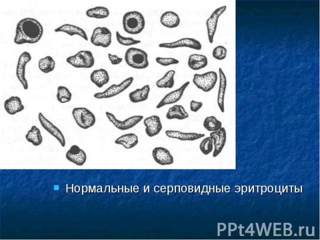 Нормальные и серповидные эритроциты Нормальные и серповидные эритроциты
