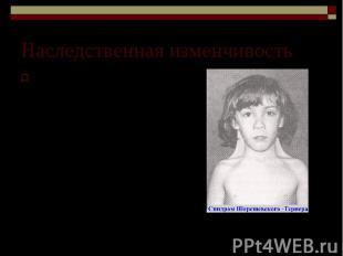 Наследственная изменчивость Синдром Шерешевского – Тернера. Моносомия по Х-хромо