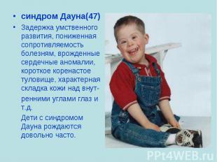 синдром Дауна(47) синдром Дауна(47) Задержка умственного развития, пониженная со